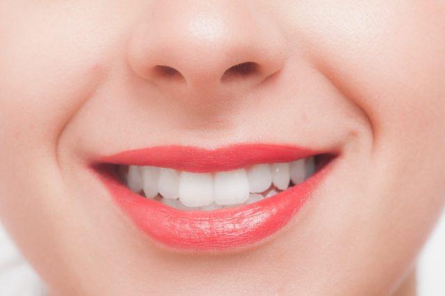 歯の着色 原因と予防対策をまとめてみた